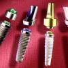 Виды зубных имплантатов