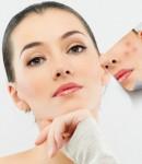 Лазерная шлифовка шрамов на лице