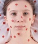 Лечение краснухи у детей