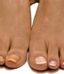 Почему ногти желтые и что делать