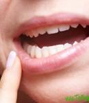 Признаки рака полости рта