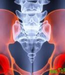 Симптомы рака костей таза