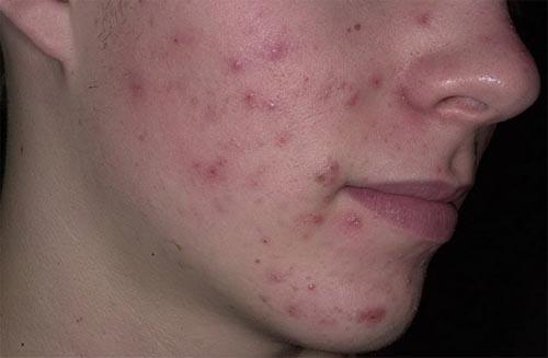 Прыщи на лице лечение зинерит