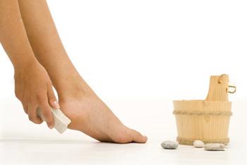 Лечение натоптышей на ногах