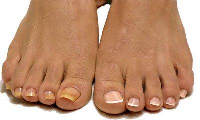 женские ноги с желтыми ногтями