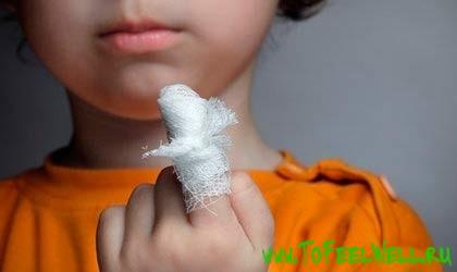 палец ребенка в бинте