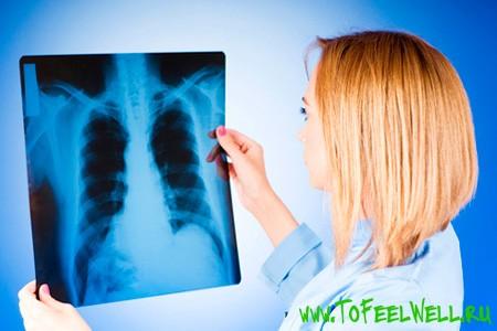девушка смотрит на рентген легких