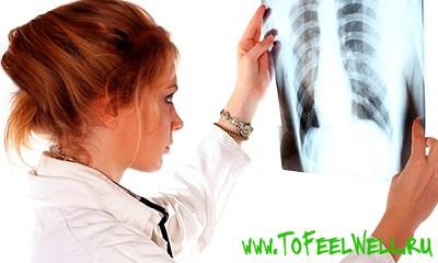 врач смотрит на рентген легких