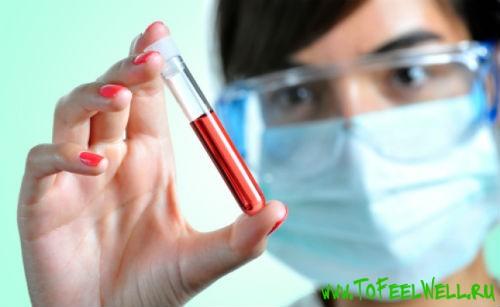 Анализ крови холестерин что это значит